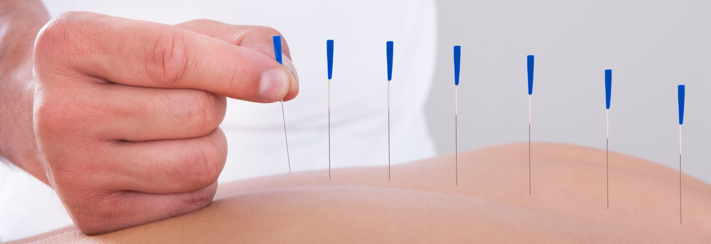 Acupuncture Seen to Relieve Pain in Children with Cerebral Palsy