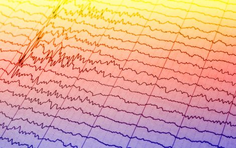 Understanding Spontaneous Brain Activity in Infants May Shed Light on CP Development
