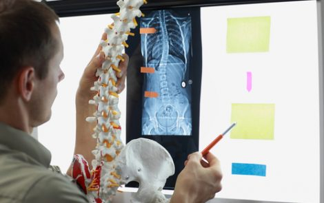 Electrical Stimulation May Have Potential to Manage Scoliosis in CP Kids, Study Suggests